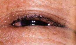 眼瞼内反(逆さまつ毛)