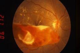 進行期:増殖網膜症