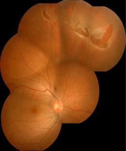 網膜裂孔・網膜円孔