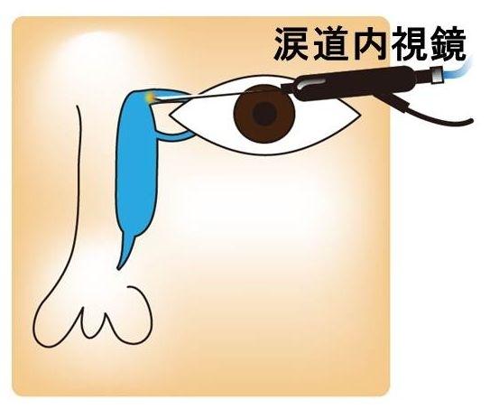 涙道内視鏡手術 (涙管チューブ挿入術)