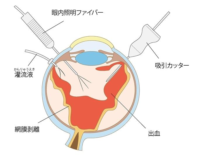 手術の方法